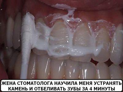 домашнее отбеливание зубов zoom купить