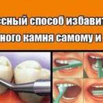 1 классный способ избавиться от зубного камня самому и дома!