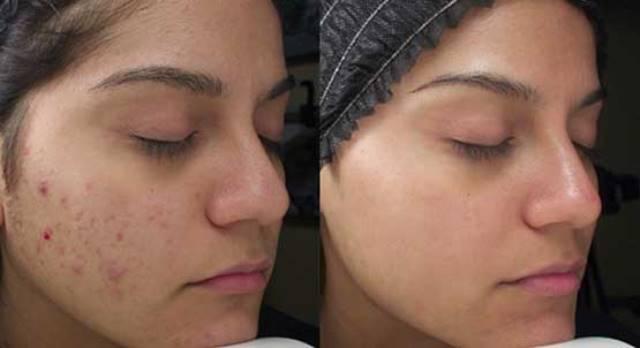 Нанесите это на любой шрам, морщины или пятна у вас на коже и наслаждайтесь тем, как они исчезают в считанные минуты! Даже врачи в шоке!