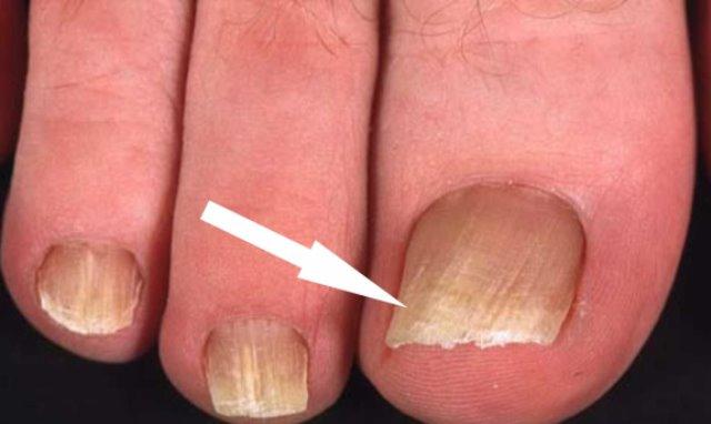 Я долго не могла удалить грибок с ногтя, пока я не сделала это. Результат меня очень порадовал!