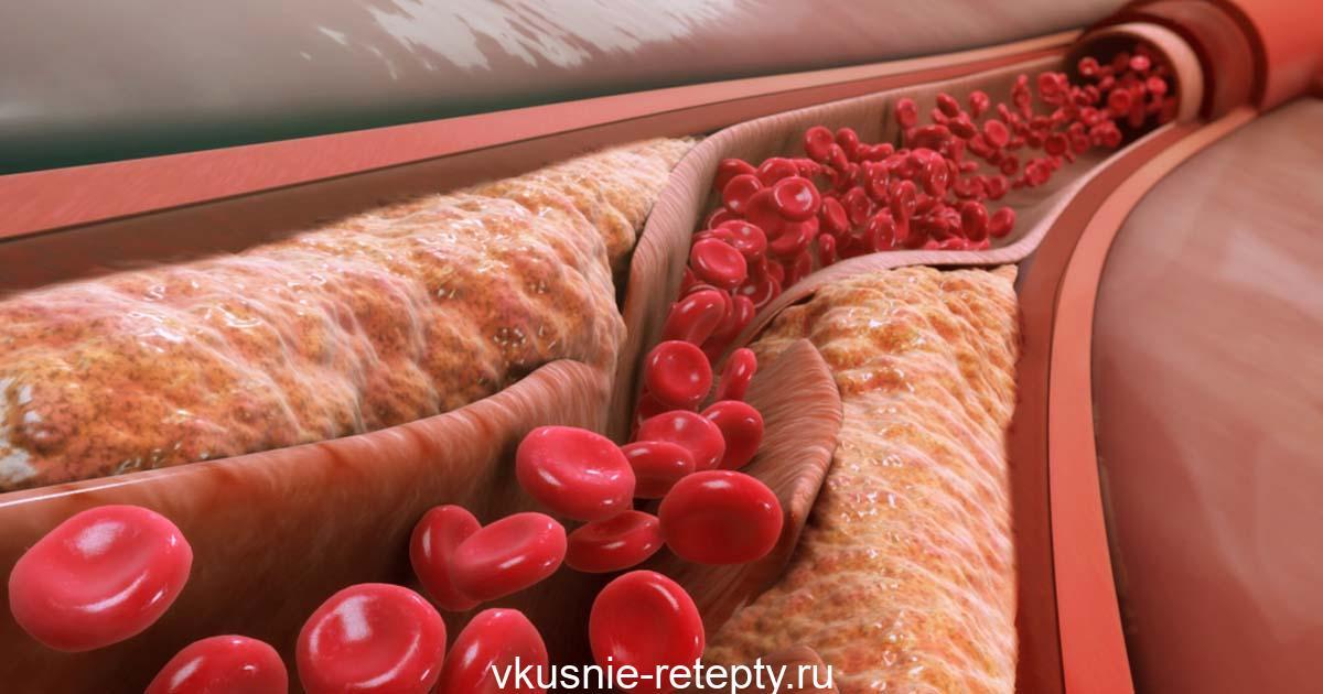 Лучшее лекарство от холестерина и высокого артериального давления!