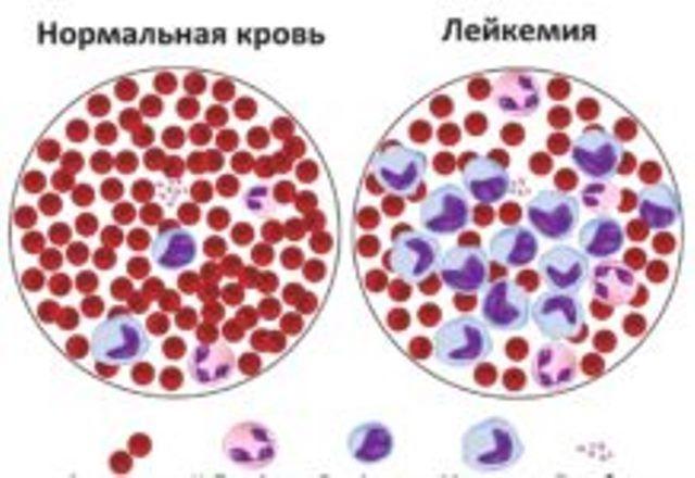 15 признаков лейкоза, которые нельзя игнорировать!