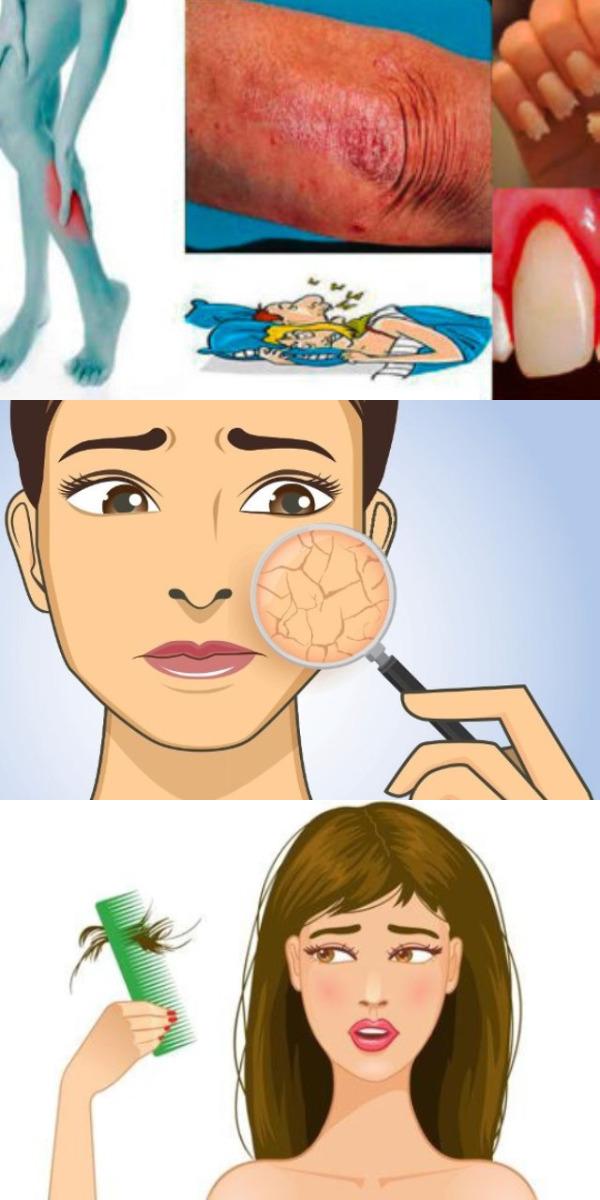 Когда тело просит помощи — 10 важных признаков, которые Вы не можете игнорировать!