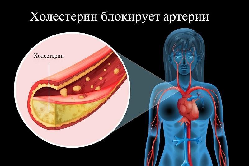 Чистка сосудов от холестерина (5 народных рецептов)